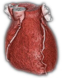 CT Heart